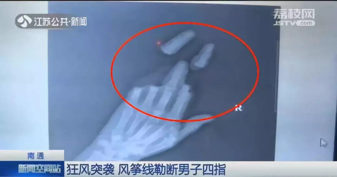 4 Fingers Were Gone after Strong Wind! Careful!