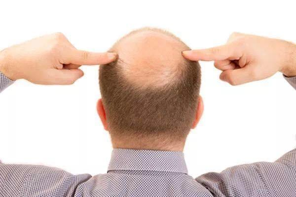Over 70% of Post 90s Suffer from Hair Loss