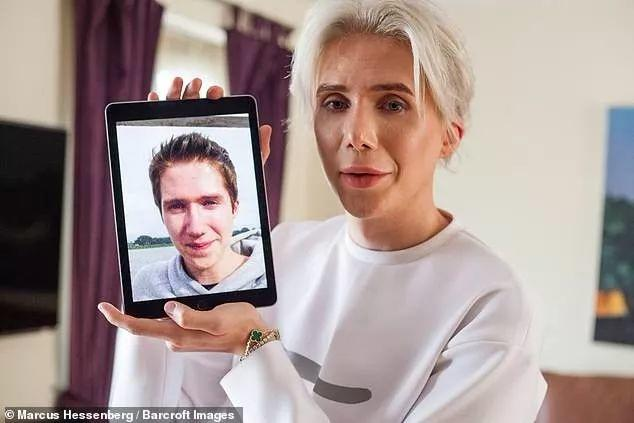 Crazy! Man Spent 1 Million RMB to Look Like An Asian!